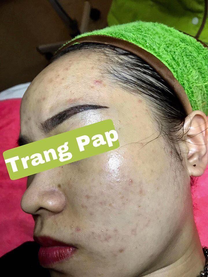 Spa TRANG PAP Bình Dương