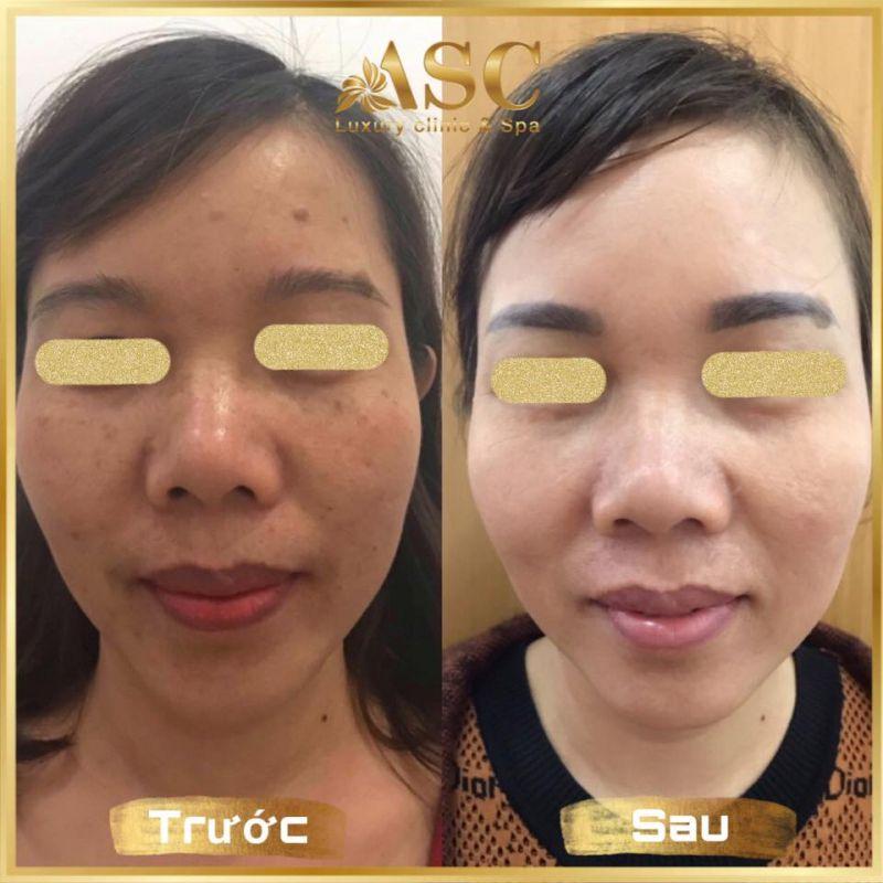 ASC Luxury Clinic & Spa