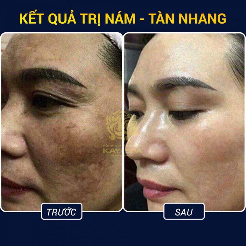 Kay Spa Đà Lạt - Lâm Đồng