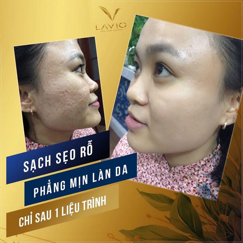 LAVIO Spa & Clinic Cần Thơ