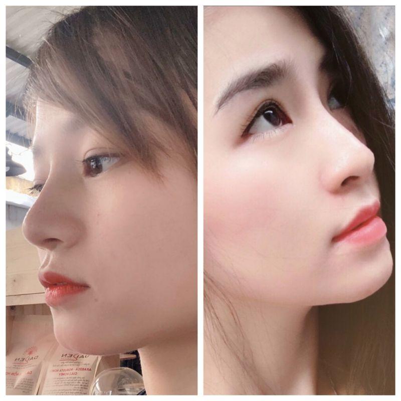 Bs Lê Trần Duy