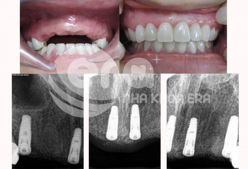 ERA Dental