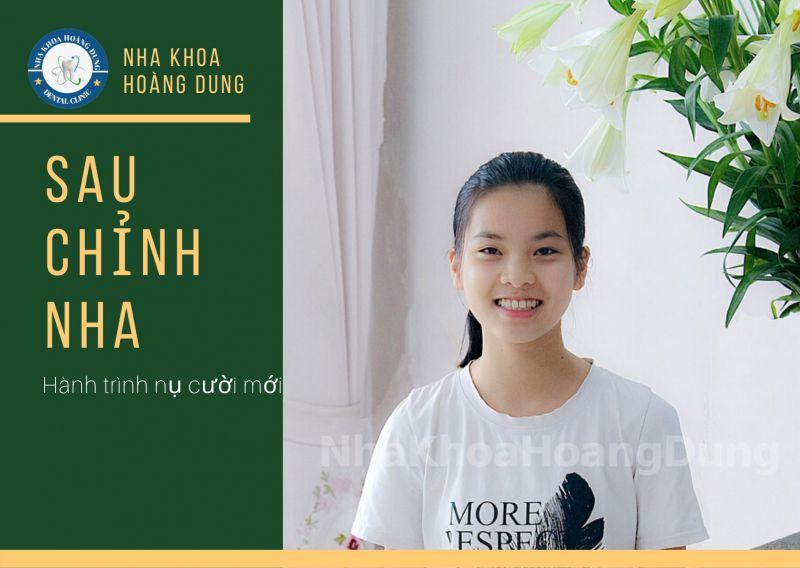 Nha Khoa Hoàng Dung Bắc Ninh