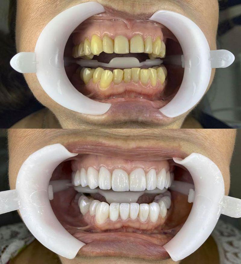 Nha Khoa Thẩm Mỹ Lào Cai - Ann Dental
