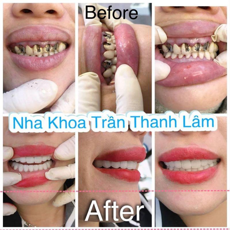 Nha Khoa Trần Thanh Lâm