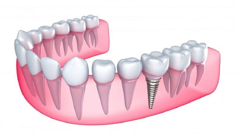 Nha khoa Apple - DentalCare Clinic