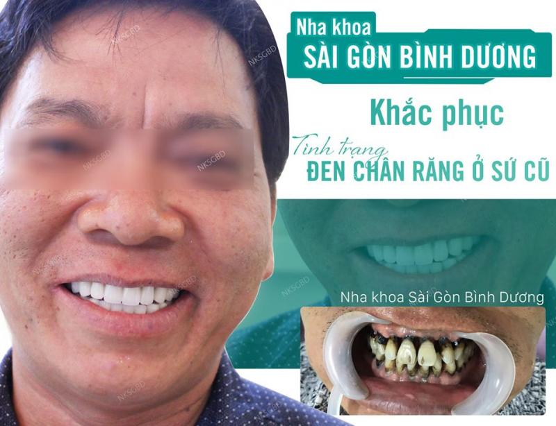 Nha khoa Sài Gòn Bình Dương