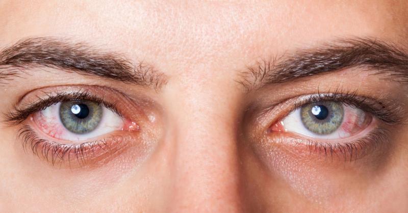 Thường xuyên chớp mắt, phòng bệnh về mắt