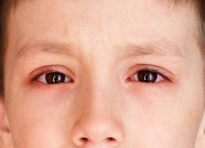 Bệnh về mắt