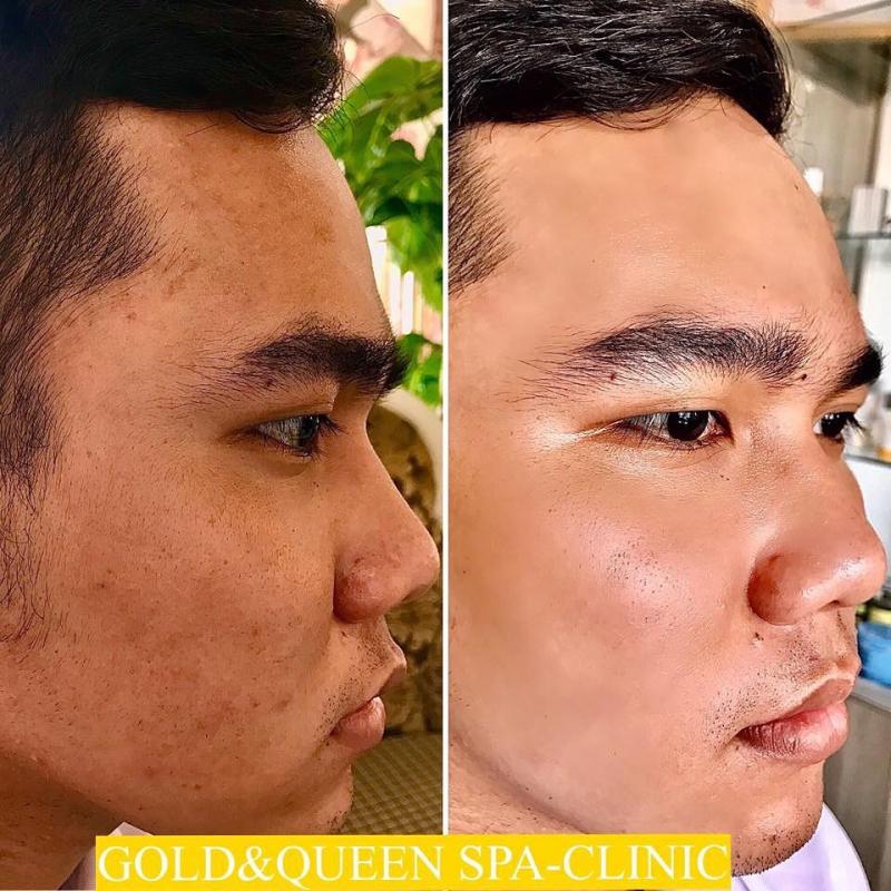 Gold & Queen Spa-Clinic