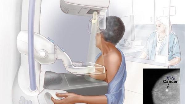 Biện pháp sàng lọc ung thư vú cho kết quả chính xác cao