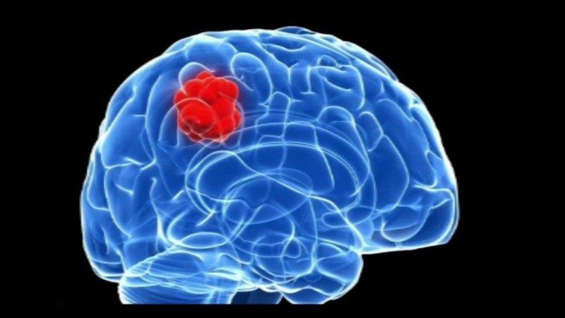 Các giai đoạn phát triển của u não