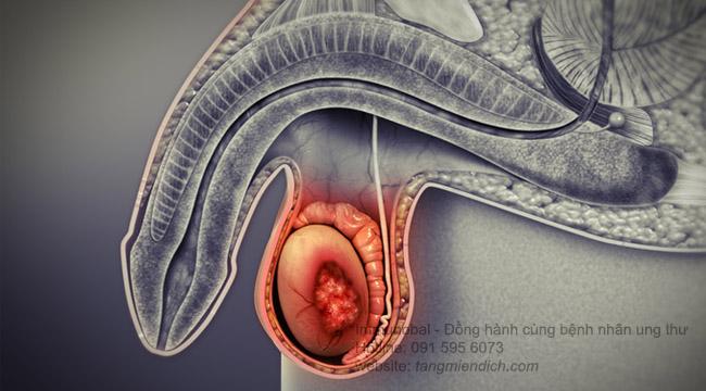 Các giai đoạn tiến triển của ung thư tinh hoàn