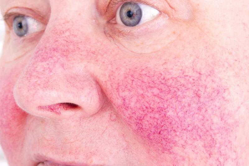 Các triệu chứng của ung thư tuyến tụy