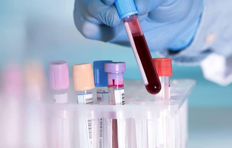 Các xét nghiệm chẩn đoán ung thư tinh hoàn