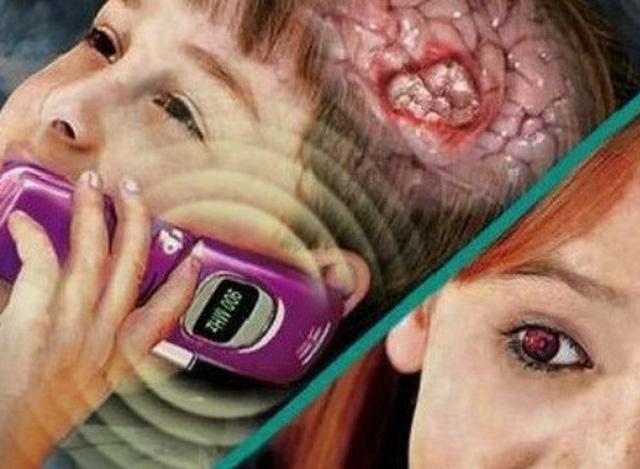 Nguyên nhân gây ra bệnh u não