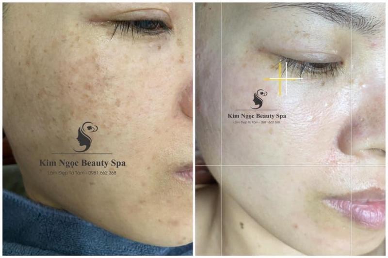 Kim Ngọc Beauty Spa
