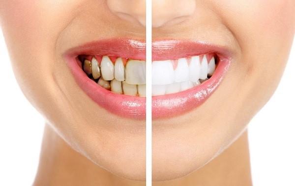 Nha khoa Thẩm mỹ K Dentist