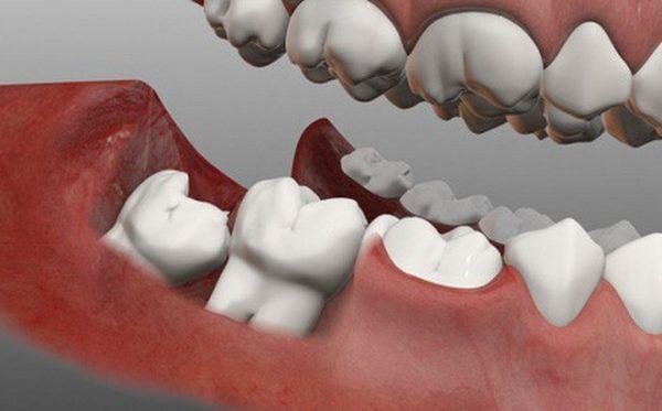 Tại sao lại có răng khôn?
