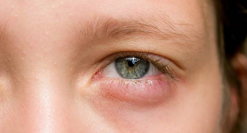 Mắt của bạn bị sưng húp