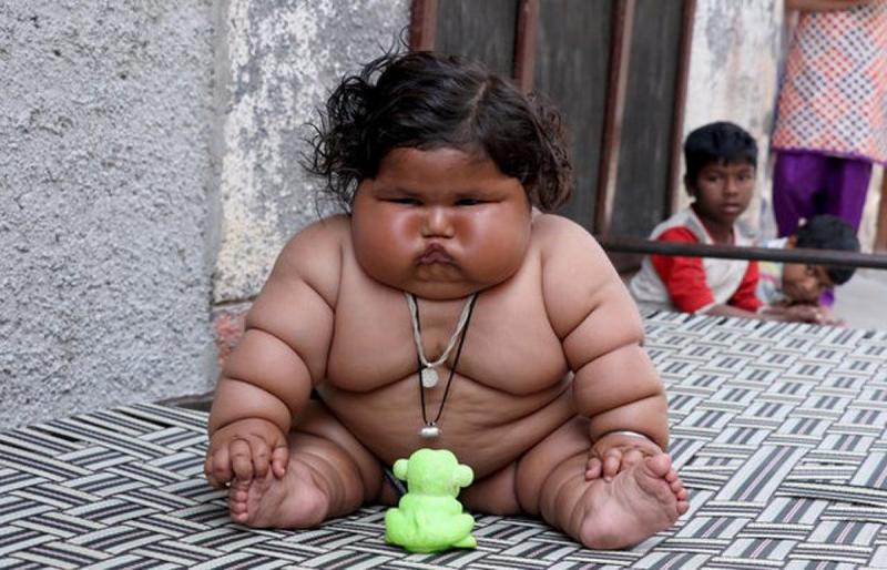 Chahat Kumar - gần 1 tuổi nặng 17kg