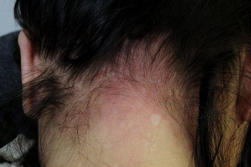 Gây kích ứng da đầu