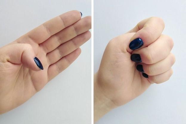Giảm phản xạ co thắt họng bằng cách siết chặt ngón tay cái trái của bạn