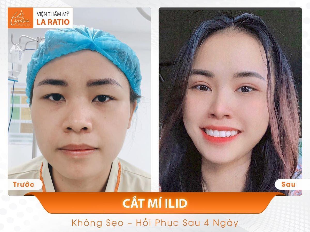 Hiệu quả thẩm mỹ sau khi cắt mí mắt, mí mắt rõ nét, đẹp tự nhiên và hồi phục sau 4 ngày
