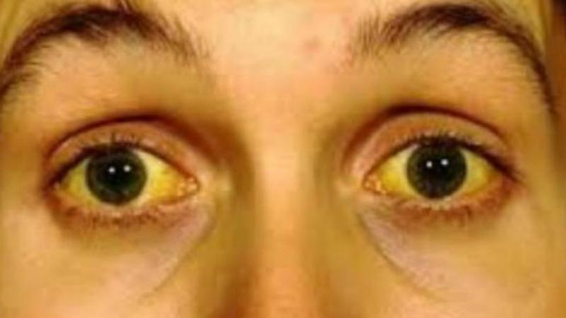 Vàng da và lòng mắt trắng