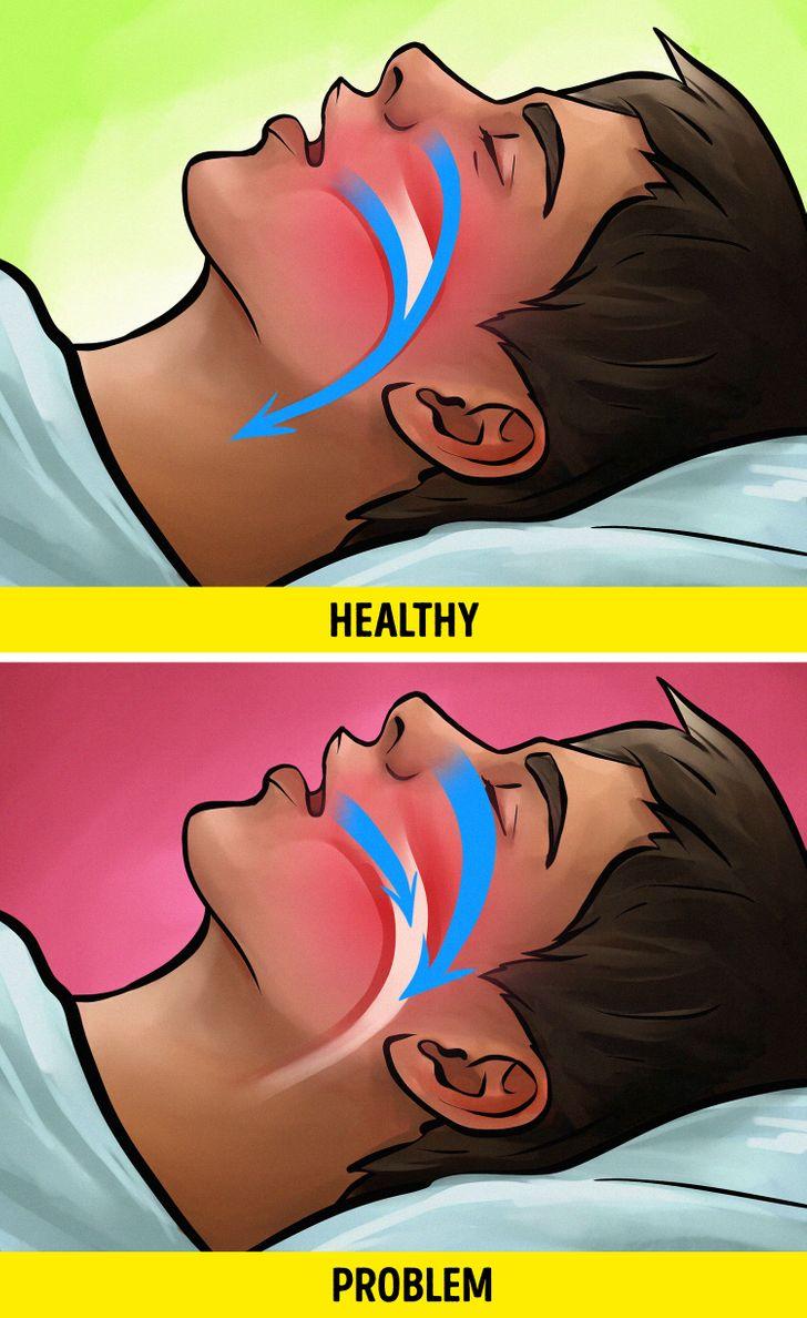 Bạn sở hữu thể mắc chứng ngưng thở khi ngủ (Obstructive Sleep Apnea – OSA)