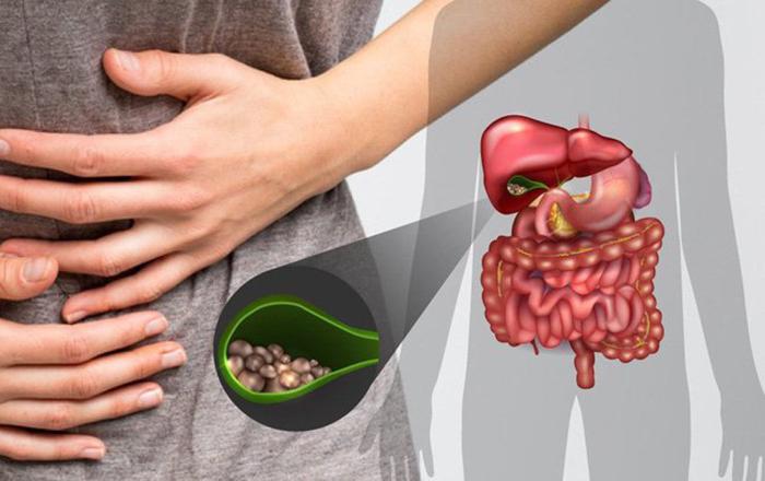Bệnh sỏi mật (Bệnh Gallstones)