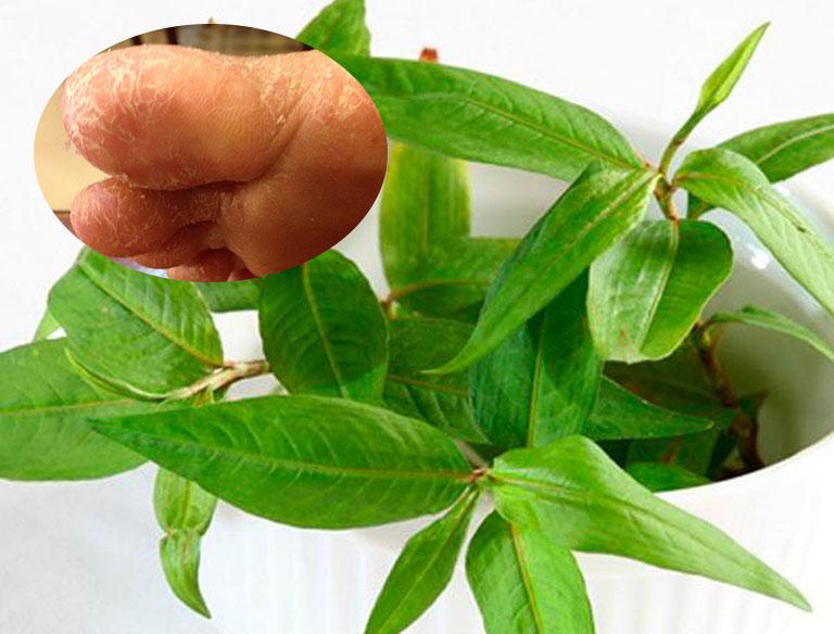 Chữa tổ đỉa bằng rau răm