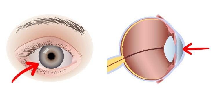 Giúp duy trì thị lực
