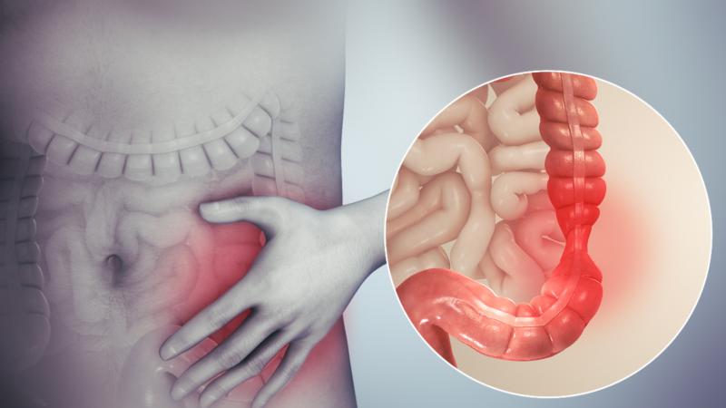 Hội chứng ruột kích thích (IBS)