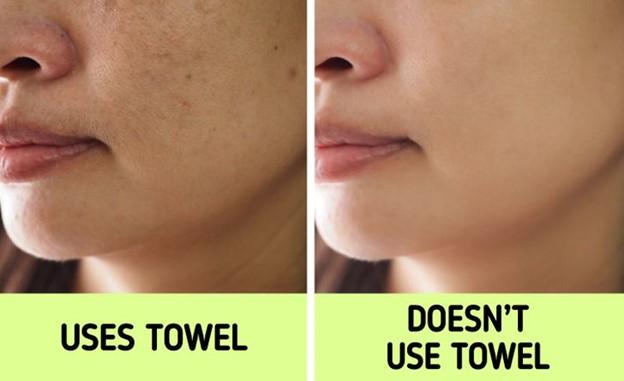 Khăn có thể gây ra mụn trên da mặt