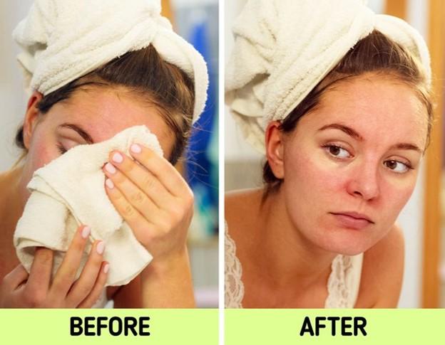 Khăn mặt có thể gây kích ứng da của bạn