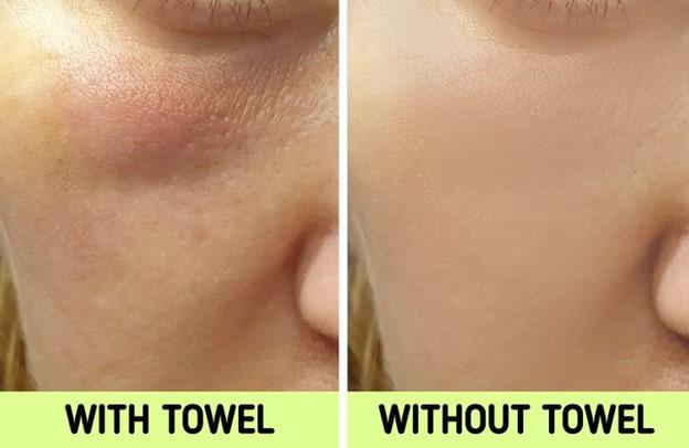 Nó có thể làm cho da của bạn nhờn hơn