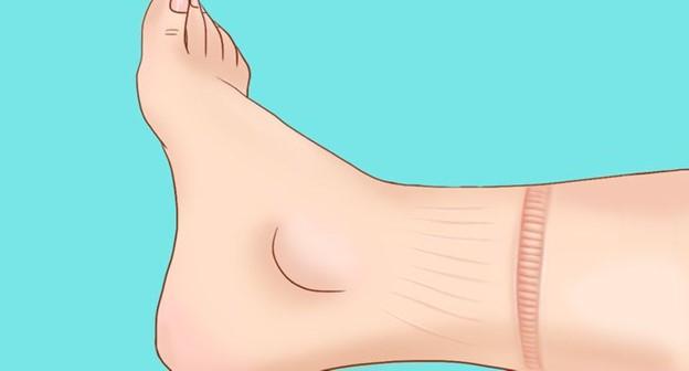 Sưng chân, mắt cá chân và bàn chân