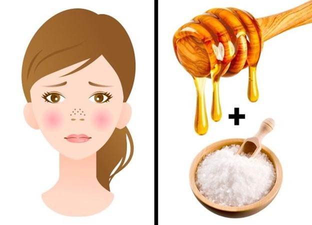 Tắc lỗ chân lông: muối biển + mật ong