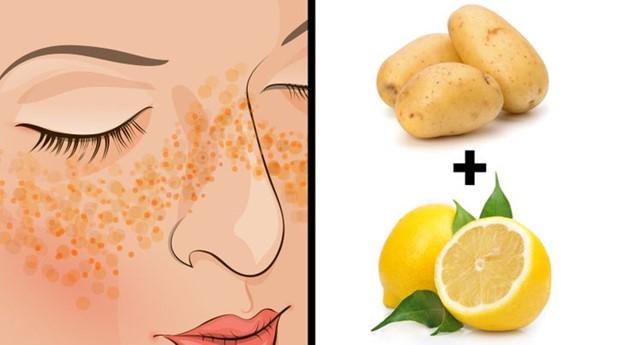 Tăng sắc tố da: khoai tây + nước cốt chanh