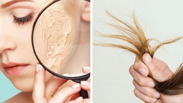 Tóc và da hư tổn