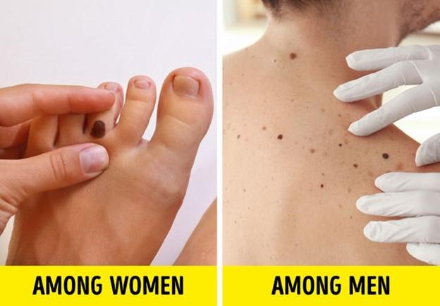 U hắc tố thường xuất hiện nhiều nhất trên mặt và tay