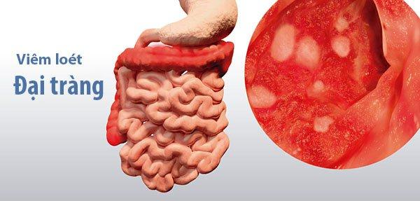 Viêm loét đại tràng (Bệnh UC)