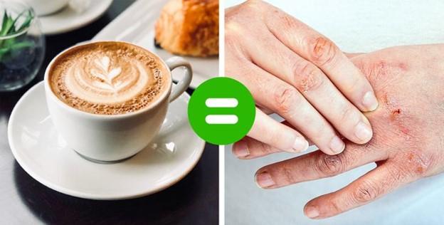 Cà phê và đồ uống có chứa caffein khiến da bạn bị khô
