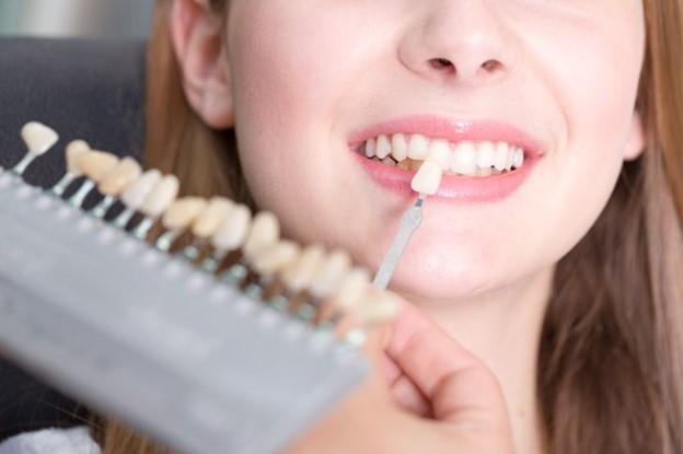 Làm thế nào để răng trắng sáng hơn ?