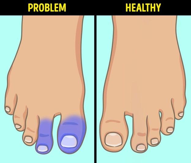 Màu xanh hoặc tím nổi trên da chân bạn