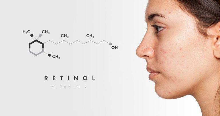 Những ai không nên sử dụng Retinol?