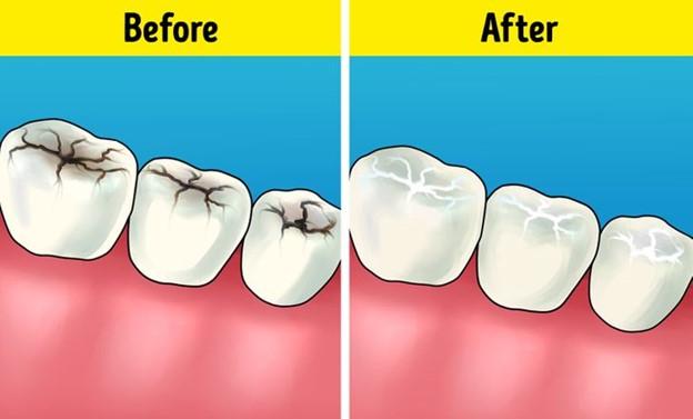 Tất cả các khe nứt trên răng là gì và tại sao chúng ta cần phải trám chúng?