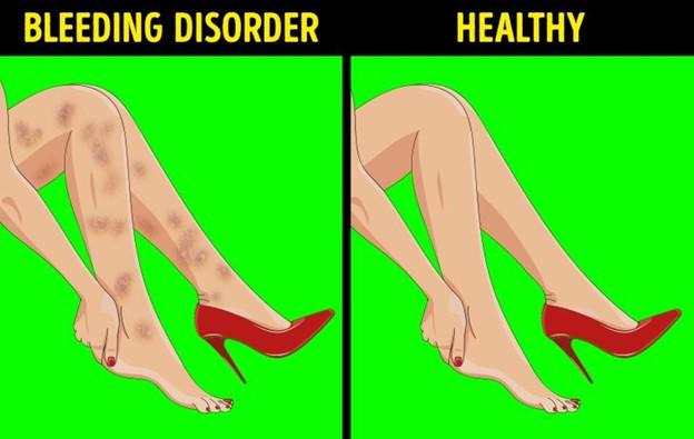 Vết bầm tím không rõ nguyên nhân trên chân
