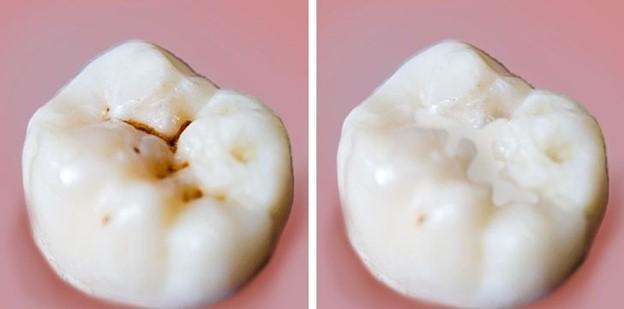 Chúng ta không dạy con cái chăm sóc răng miệng đúng cách